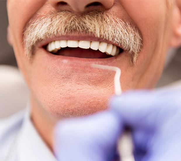 Woodland Hills Adjusting to New Dentures