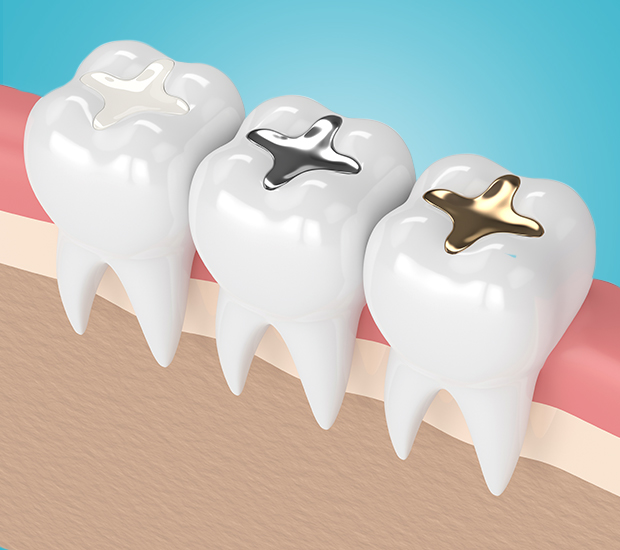 Woodland Hills Tooth Colored Fillings