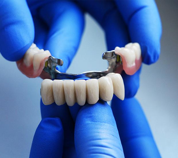 Woodland Hills Dental Bridges