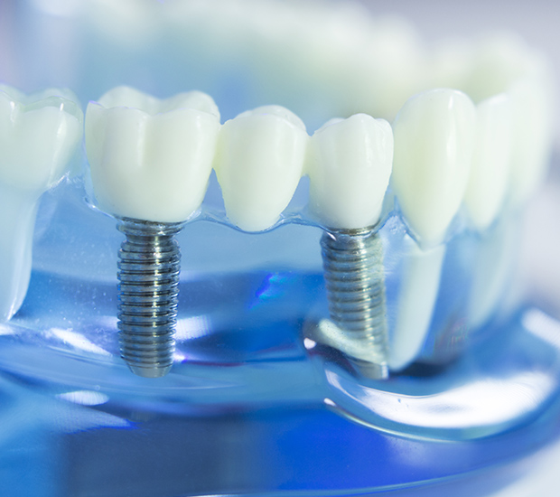 Woodland Hills Dental Prosthetics