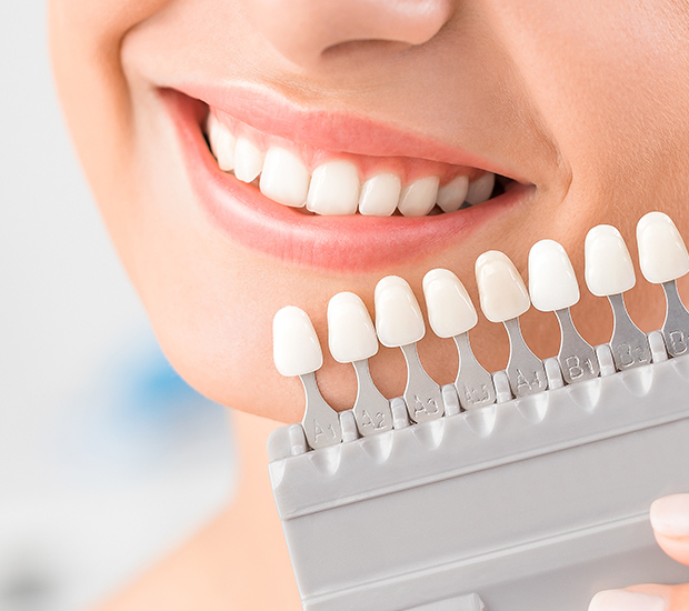 Woodland Hills Dental Veneers and Dental Laminates