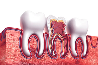 A Root Canal Dentist In Woodland Hills: Explaining The Basics Of A Root Canal
