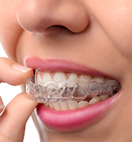 Clear Aligners - Almost Invisible Braces Woodland Hills, CA