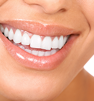 Teeth Whitening Services Woodland Hills, CA